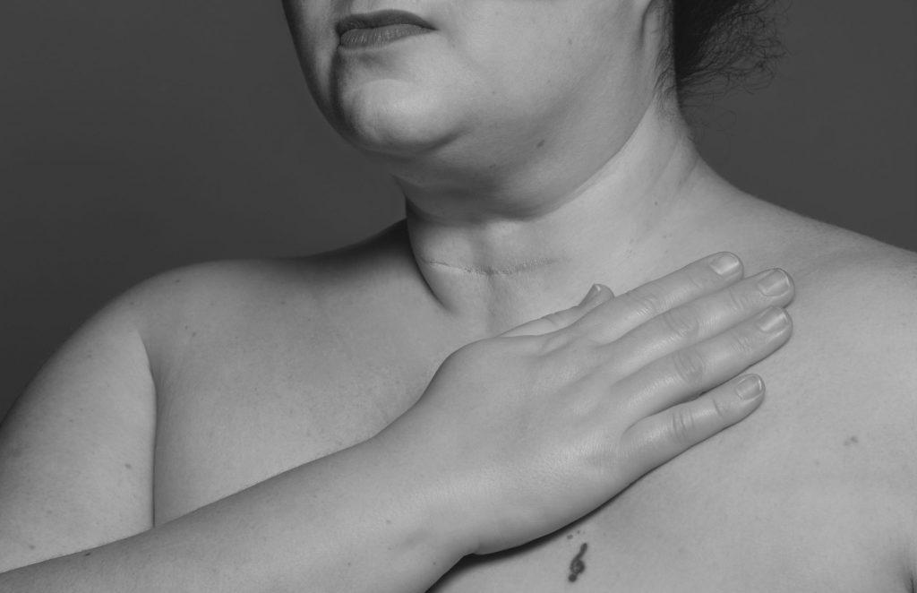ärr efter sköldkörteloperation